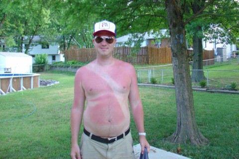 Seat Belt Sun Burn